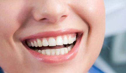 A febre das lentes de contato dentais