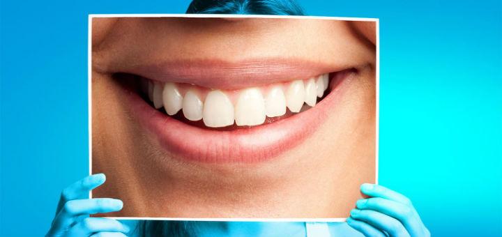 ABCD inicia campanha de prevenção de câncer bucal e HPV