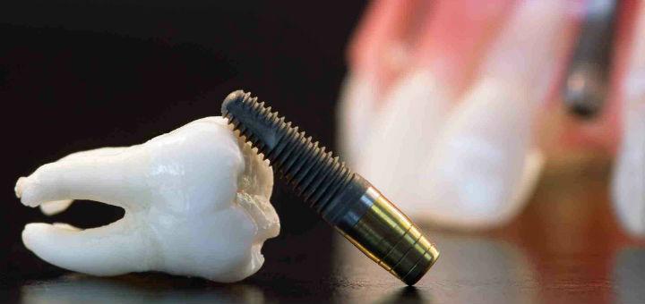 Novidades e considerações sobre a Implantodontia