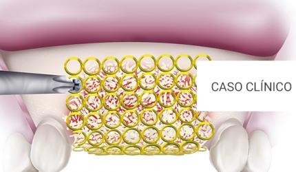 Considerações para otimização em enxertia óssea