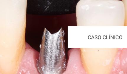 Otimização de resultado através da colocação do Implante Dentário e associação de osso liofilizado e membrana reabsorvível
