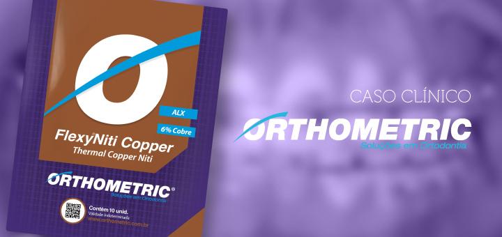 O poder do cobre na ortodontia