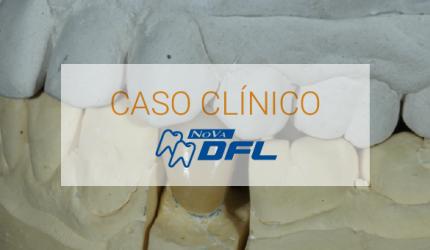 Restauração indireta em dente posterior Metal Free (Dissilicato de Lítio)