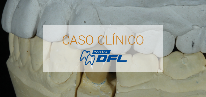 1609-blog-caso-clinico-dfl
