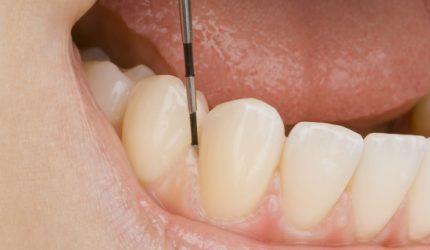 Considerações sobre as cirurgias plásticas periodontais