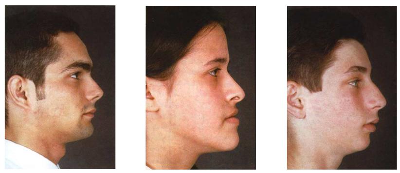 Tipos de perfil facial