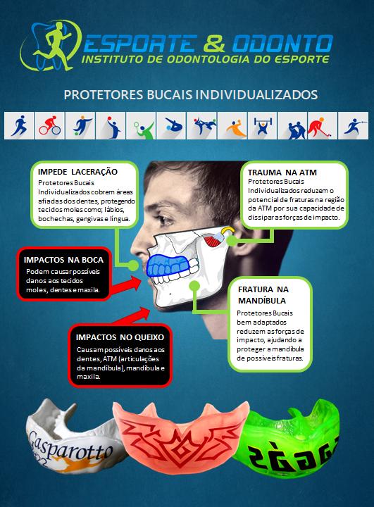Protetor Bucal Vantagens