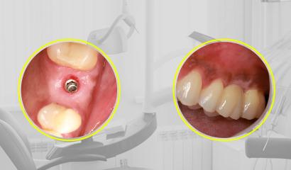 Regeneração Óssea com a utilização de Bone Heal