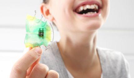 Ortodontia: primeiras impressões