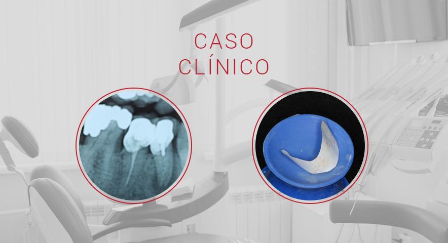 Caso Clínico: regeneração de defeito ósseo extenso