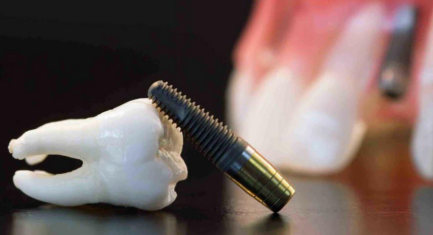 Exodontia minimamente traumática e implantes dentários