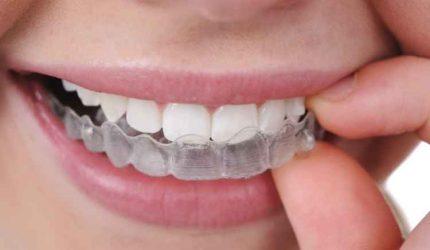 """Que tal usar um aparelho nos dentes que é """"invisível""""?"""