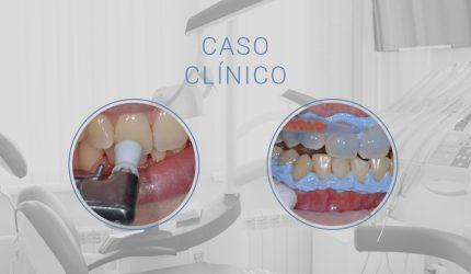 Clareamento combinado: potencializando a satisfação do paciente com Pola da SDI.