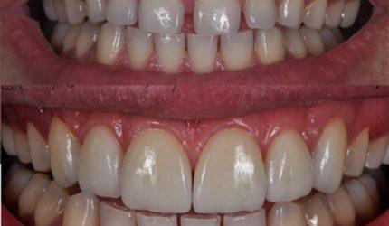 Lente de contato para os dentes é a nova moda