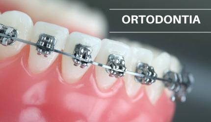 Aparelhos ortodônticos I: a ortodontia no mundo e no Brasil