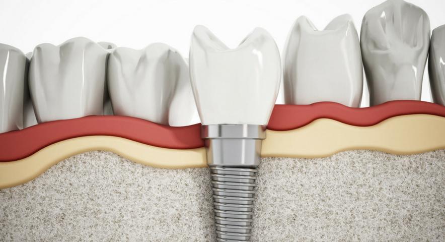 Qual sistema de implantes escolher?