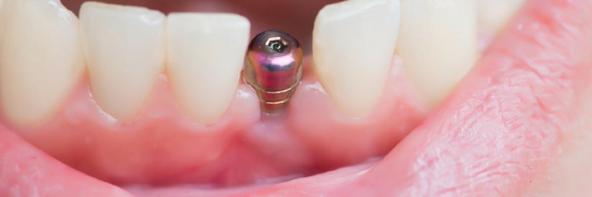 Implantes Estéticos Imediatos