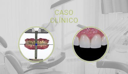Odontologia Digital na Confecção de Laminados Cerâmicos