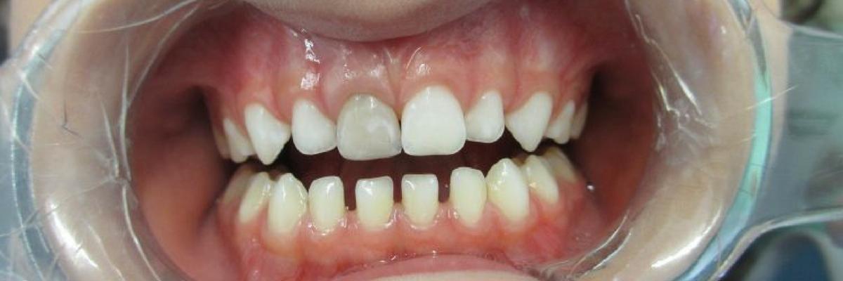 Alteração de cor em dentes decíduos após traumas