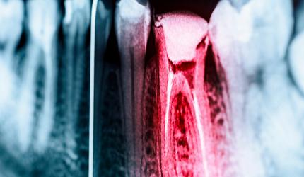 Saiba mais sobre a tecnologia na Endodontia: as perguntas mais frequentes