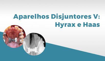 Aparelhos ortodônticos V: disjuntores palatinos Hyrax e Haas