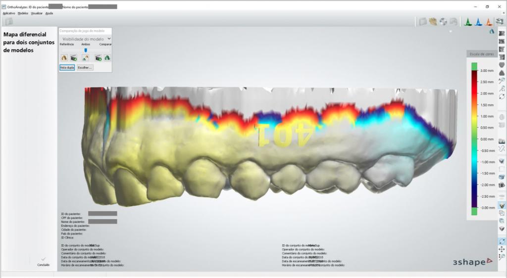 Escaneamento intraoral e software de manipulação: como eles interferem no arquivo final?